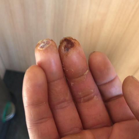 Nach fingerkuppe abgeschnitten wächst Fingerkuppe abgeschnitten..
