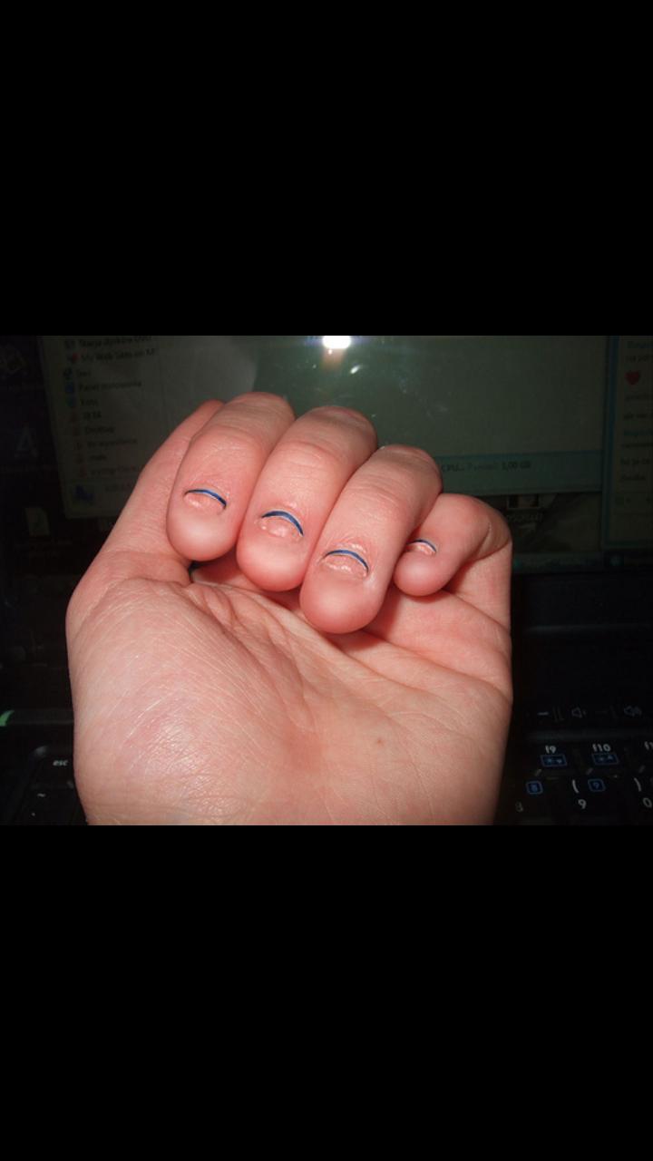 abgekaute Finger-und fußnägel.. (Fingernägel, kauen)