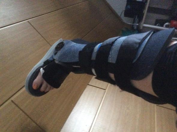 Meine Orthese  - (Gesundheit und Medizin, Behandlungsfehler, Achillessehnenabriss )