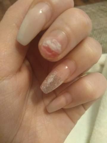 Gel nagel abgebrochen was tun