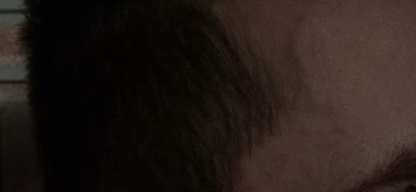 Stirn Adern