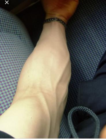 sichtbare venen arm