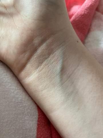 Haut venen stark durchsichtige adern sichtbare Sichtbare Venen