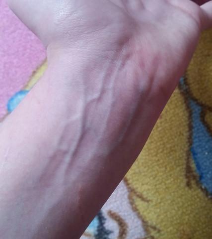 - (Arm, Adern)