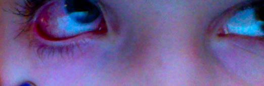 NEEEEEIN - (Augen, krank, rot)