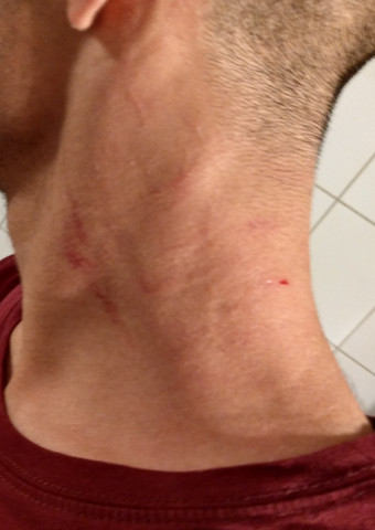 ärtzliches Attest Bekommen Verletzungen Arzt Jobcenter