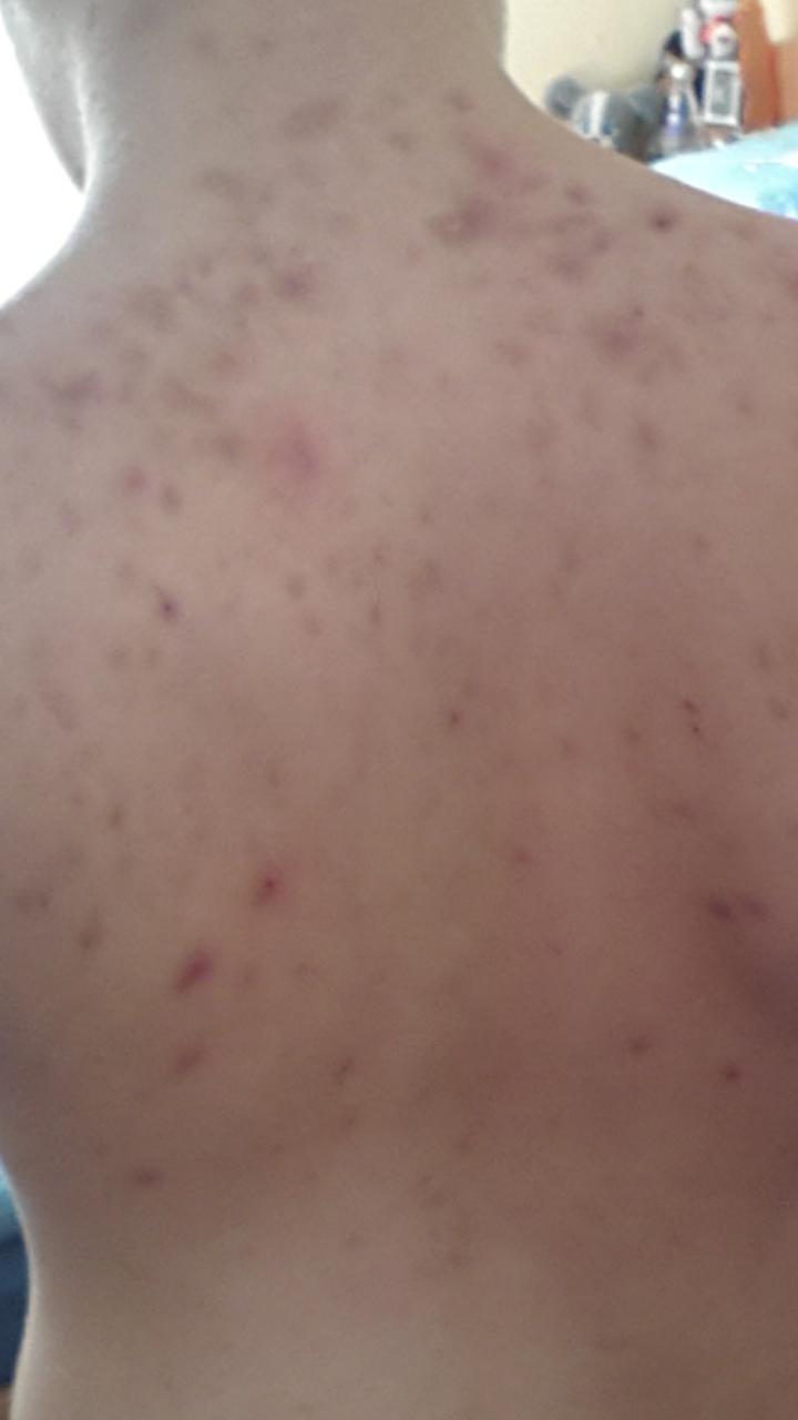 Akne auf dem Rücken! (Pickel)