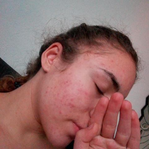 Akne - (Gesundheit, Beauty, Haut)