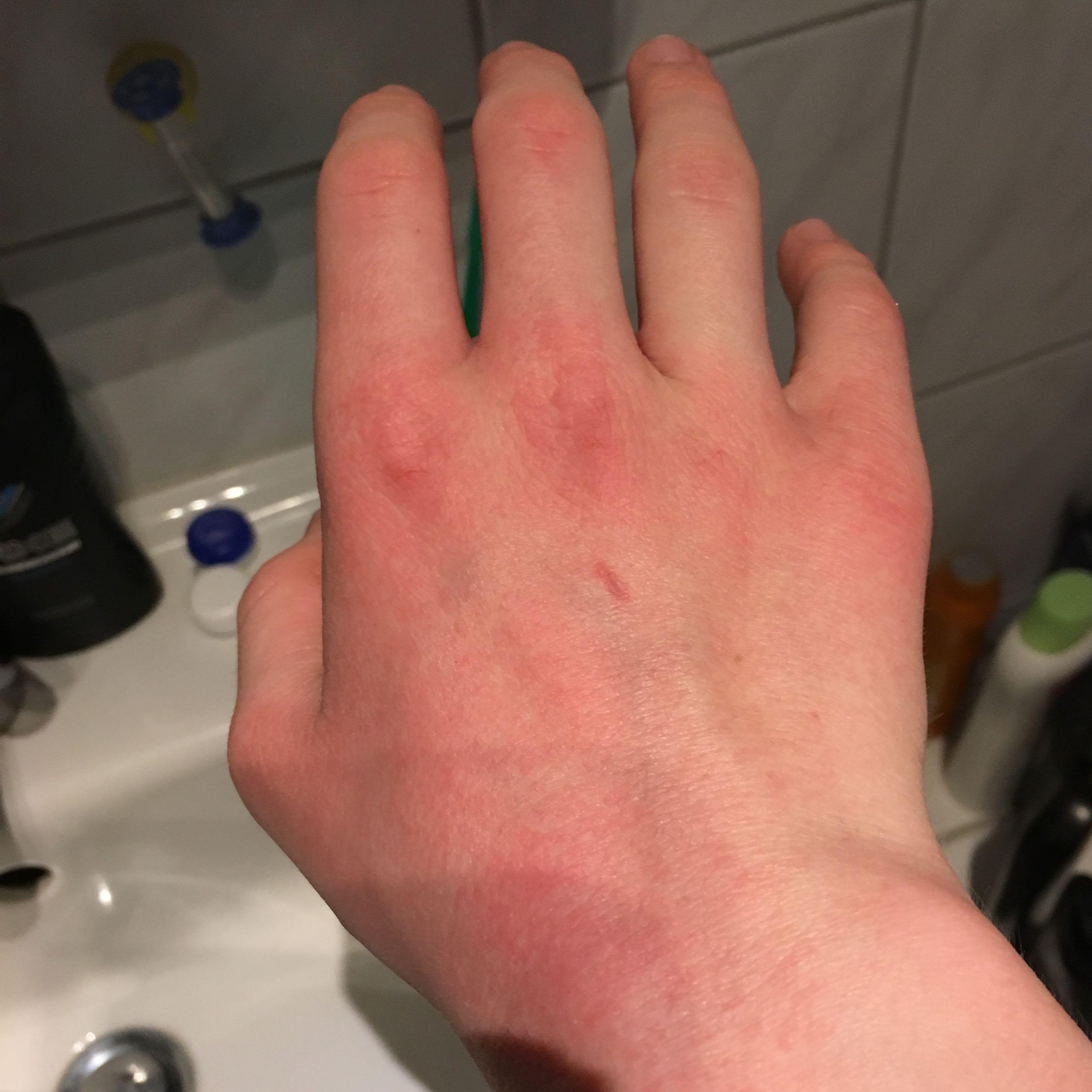 allergie - winter handcreme? (gesundheit, medizin, ausschlag)