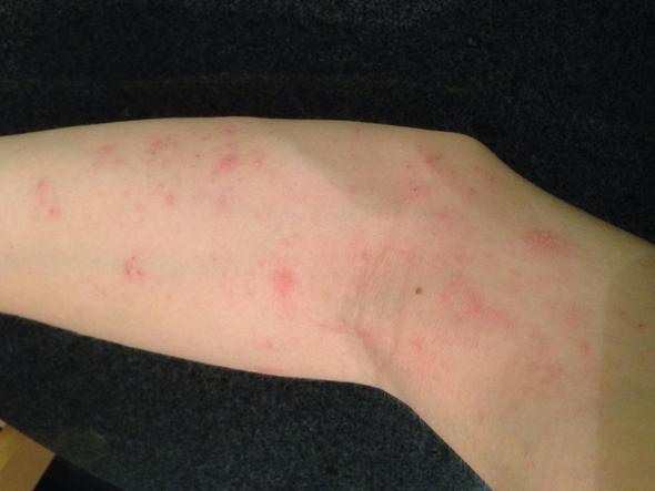 Arm - (Allergie, Hauterkrankung)