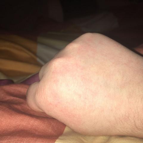Hand,juckreiz - (Gesundheit und Medizin, Allergie, Hand)