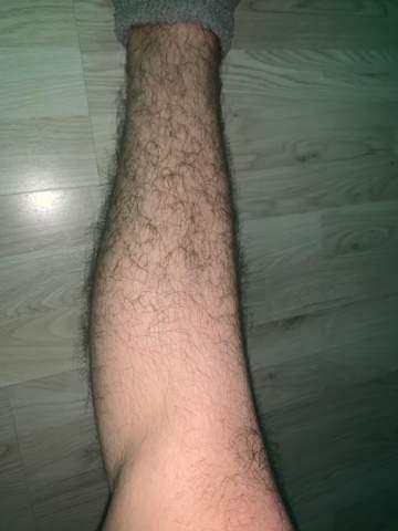 Als Junge zu viel Beinbehaarung?