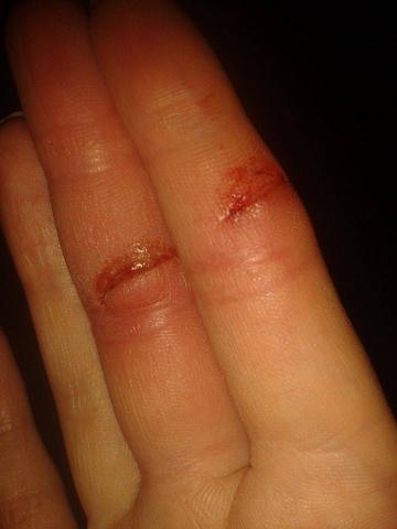 finger geschnitten wann nähen