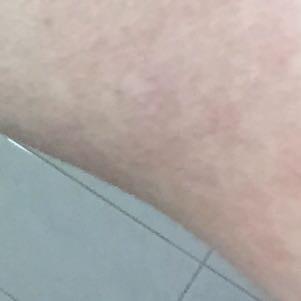 Zoom  - (Haut, Flecken)