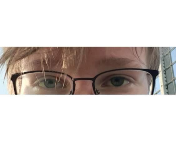 An was liegt die plötzlich andere Augenfarbe?