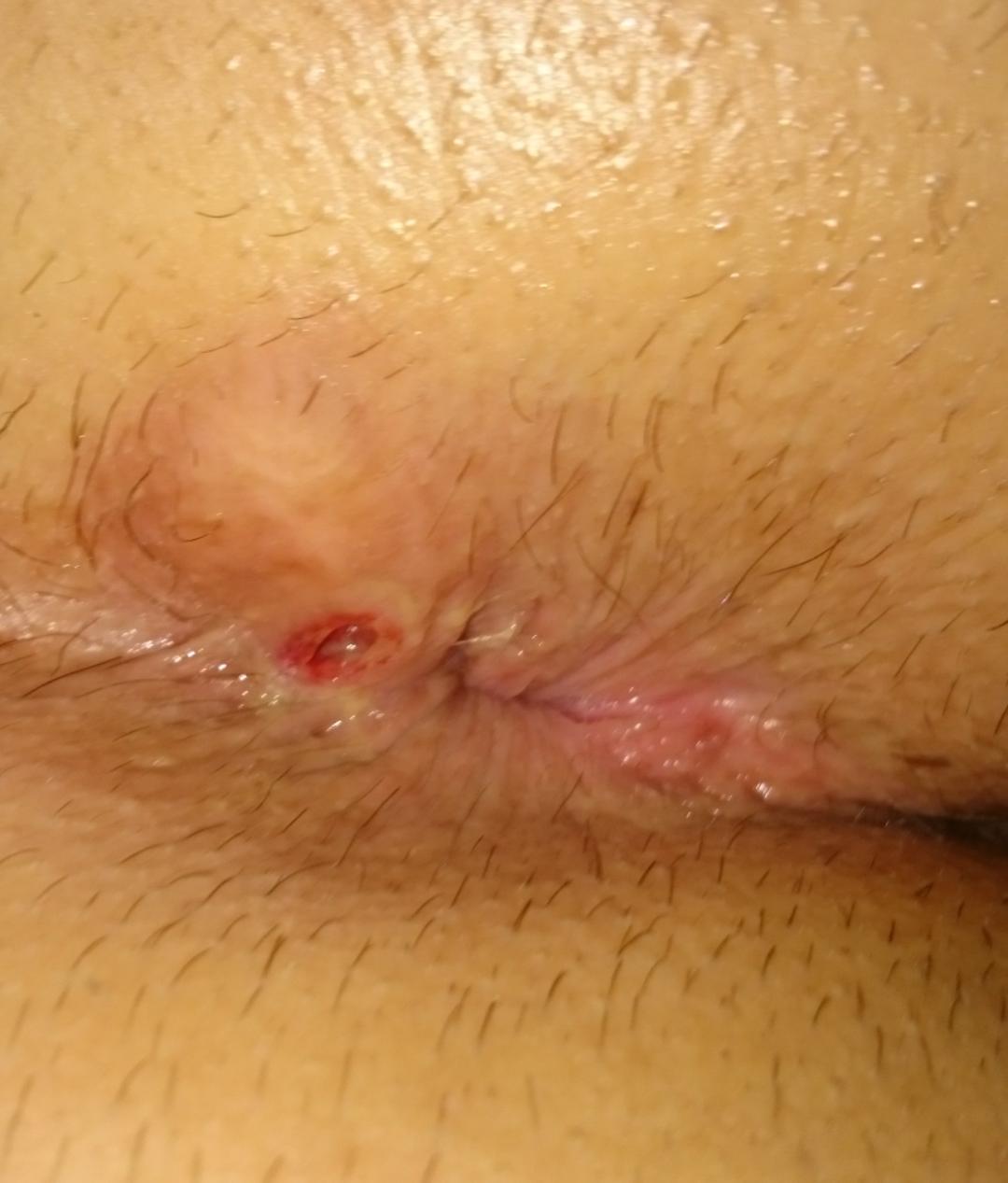 closeup brunette anal sex