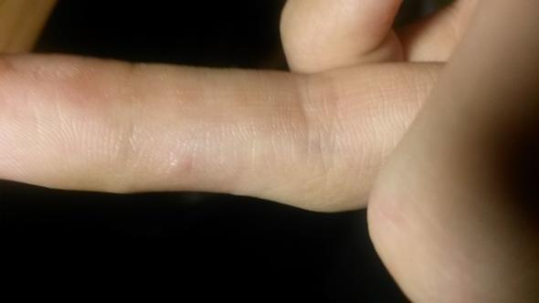 finger1 - (Finger, Warzen)