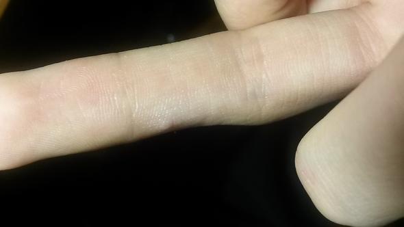 finger2 - (Finger, Warzen)