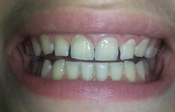 zähne - (Arzt, Zähne)