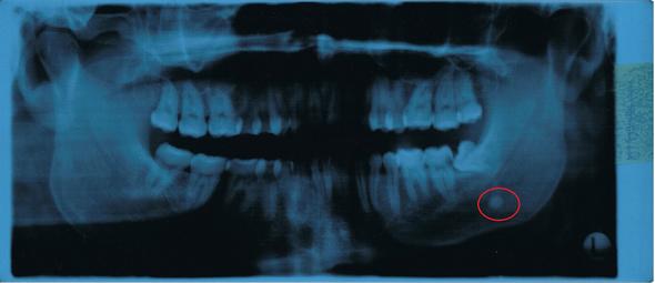 roter Kreis und den runden Fleck - (Angst, Zahnarzt, Zahnmedizin)