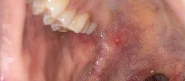 Aphte oder Herpes Hilfe?