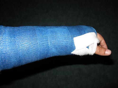 Juckt gips arm gebrochen Unfall in