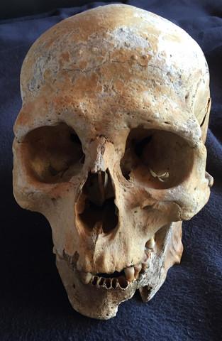 Arztnachlass mit echten menschlichen Schädeln ? (Schädel, menschlich)