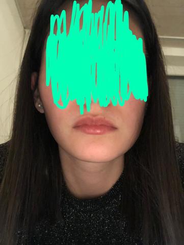 Sieht aus hässlich gesicht mein hägma.rusticcuff.com Kopf