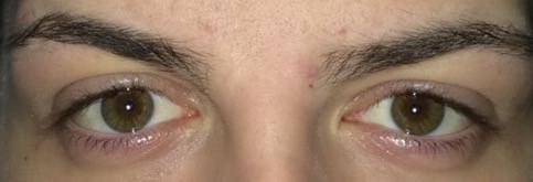 Hier ein Bild von meinem Augen auf Fotos  - (Augen, Symmetrie)