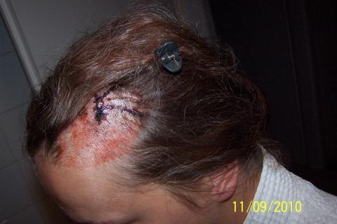 Atherom von 0,5cm am Kopf entfernt (Operation)