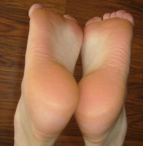 Meine Fersen (nach dem Eincremen) - (Füße, Ferse, Hornhaut)