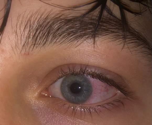 - (Augen, Kontaktlinsen)