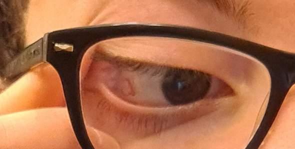Auge brennt beim Tragen der Kontaktlinsen, was jemand was das sein könnte.?