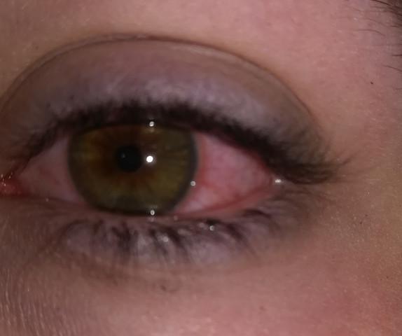 - (Gesundheit, Gesundheit und Medizin, Augen)