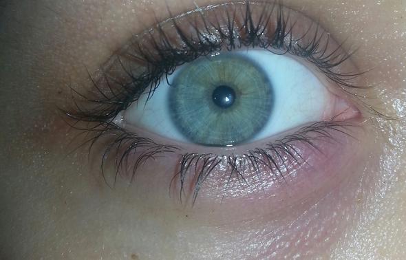 Mein Auge - (Augen, Gerstenkorn)
