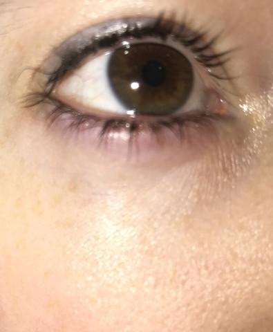 Auge dick  - (Gesundheit, Körper, Augen)