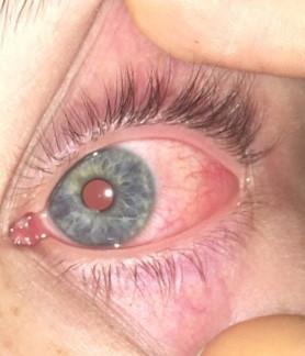 Auge juckt, ist rot, tut weh und angeschwollen