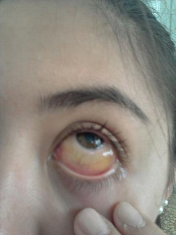 Das auge - (Krankheit, Augen)