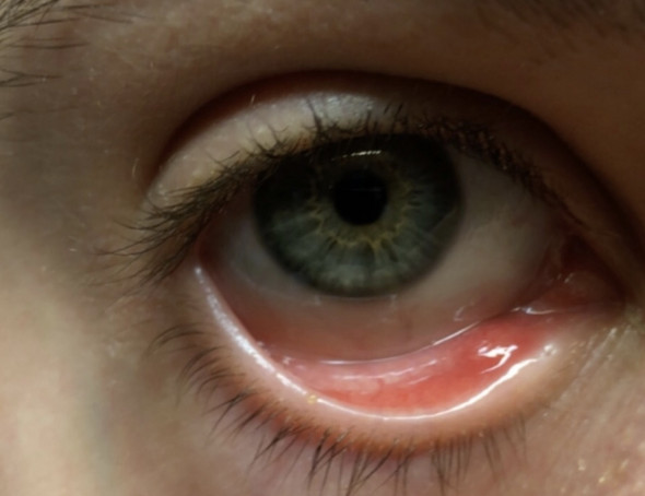 Auge leıcht geschwollen? (Gesundheit und Medizin, Augen