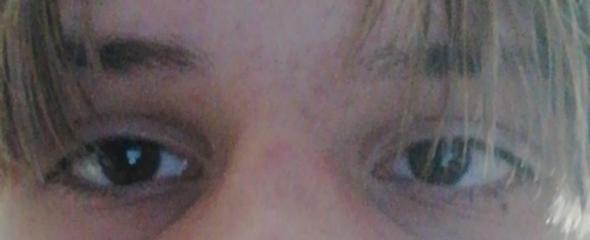 Auge schielt durch Übermüdung?