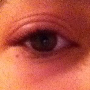Mein Auge tut weh und ist geschwollen. Was soll ich tun