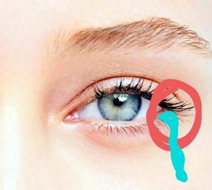 """Augen """"tränen"""" aus dem Nicht wieso?"""