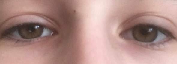 Große augen verschieden Ein Auge