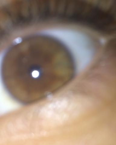 Ich sehe da schon ein bisschen grün !? - (Gesundheit, Augenfarbe)