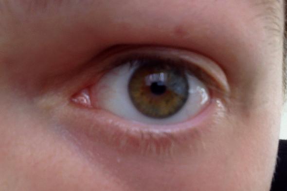 Augenfarben Wechsel - (Augen, Augenfarbe)
