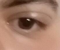 Augenlied geschwollen - (Augen, geschwollen)