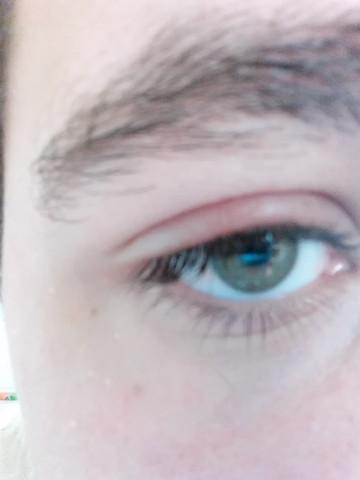 - (Augen, Erkrankung, Augenlid)