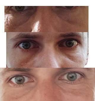 Augenringe?
