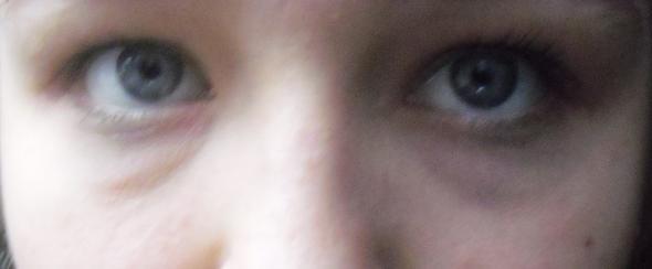 Augenringe Mit 17 Was Tun Beauty Augen Schonheit