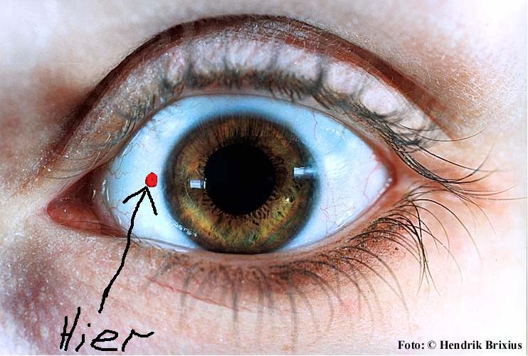 Augeverletzung / Gefährlich ? (Augen, verletzt)